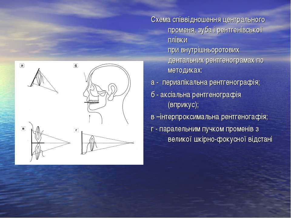 Схема співвідношення центрального променя, зуба і рентгенівської плівки при в...