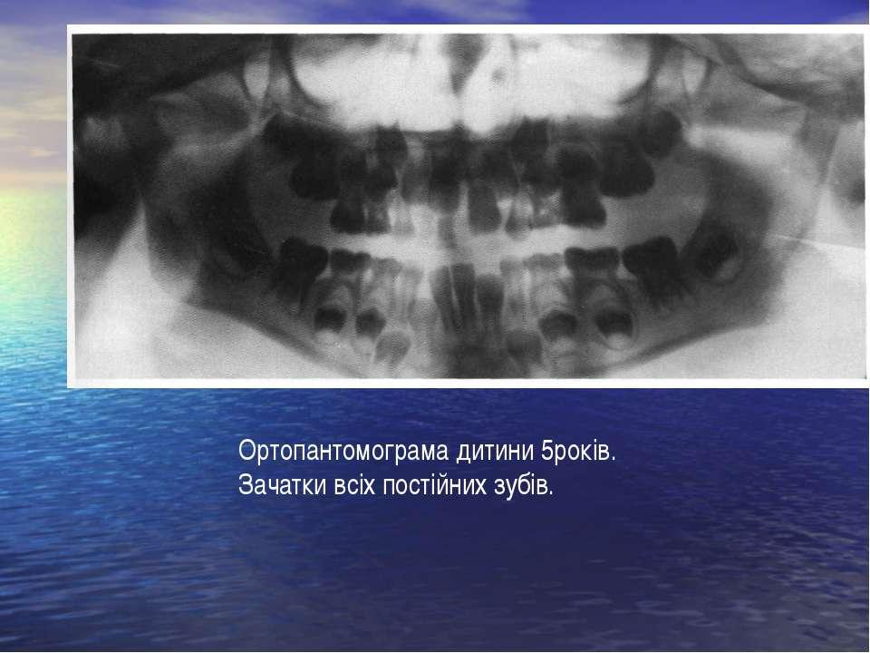Ортопантомограма дитини 5років. Зачатки всіх постійних зубів.