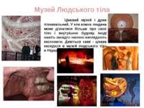 Музей Людського тіла Цікавий музей і дуже пізнавальний. У нім кожна людина мо...