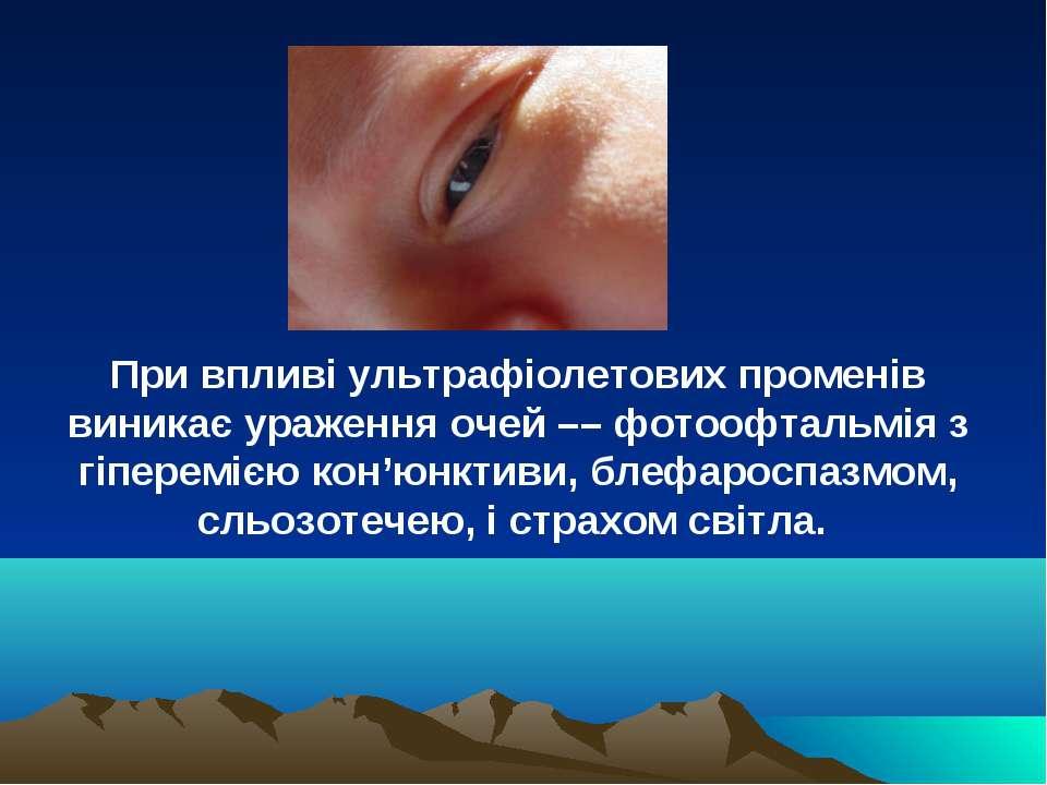 При впливі ультрафіолетових променів виникає ураження очей –– фотоофтальмія з...
