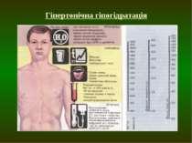 Гіпертонічна гіпогідратація