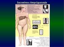 Ізотонічна гіпергідратація