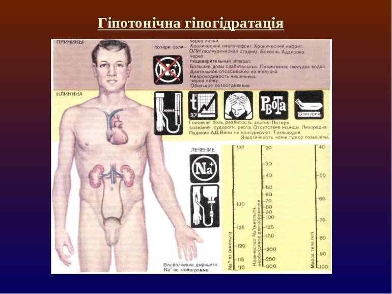 Гіпотонічна гіпогідратація
