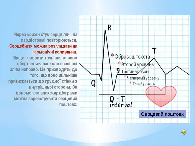 Через кожен стук серця лінії на кардіограмі повторюються. Серцебиття можна ро...