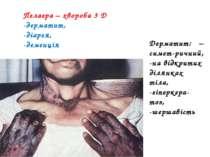 Пелагра – хвороба 3 Д -дерматит, -діарея, -деменція Дерматит: – симет-ричний,...