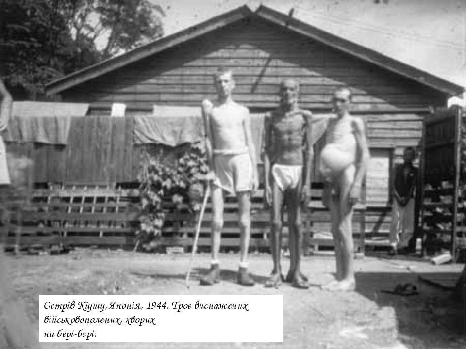 Острів Кіушу, Японія, 1944. Троє виснажених військовополених, хворих на бері-...
