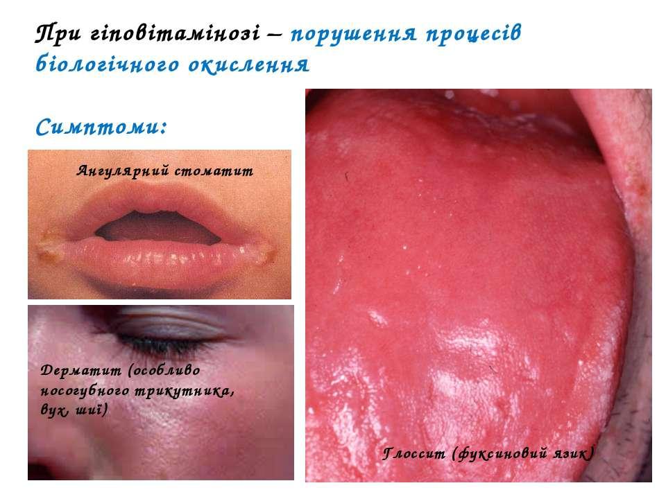 При гіповітамінозі – порушення процесів біологічного окислення Симптоми: Ангу...