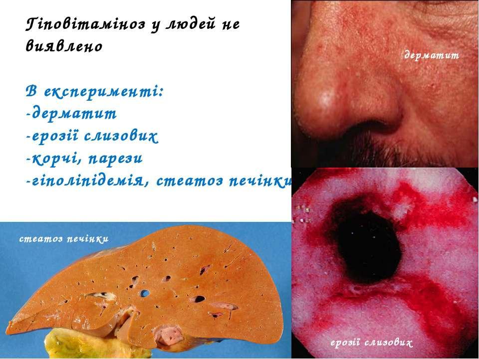 Гіповітаміноз у людей не виявлено В експерименті: -дерматит -ерозії слизових ...