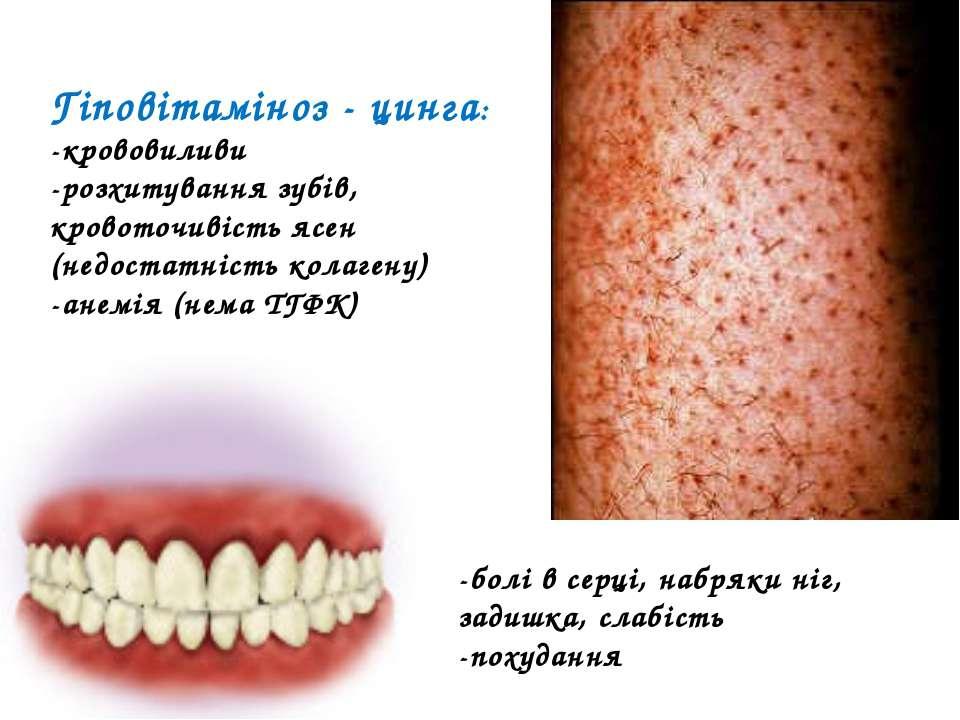 Гіповітаміноз - цинга: -крововиливи -розхитування зубів, кровоточивість ясен ...