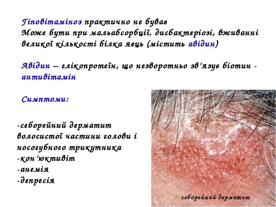 Гіповітаміноз практично не буває Може бути при мальабсорбції, дисбактеріозі, ...