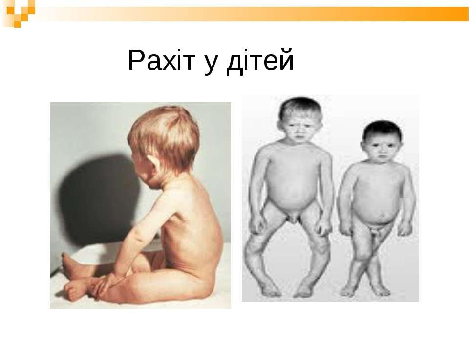 Рахіт у дітей