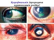 Ксерофтальмія (прогресуюча кератинизація рогівки)
