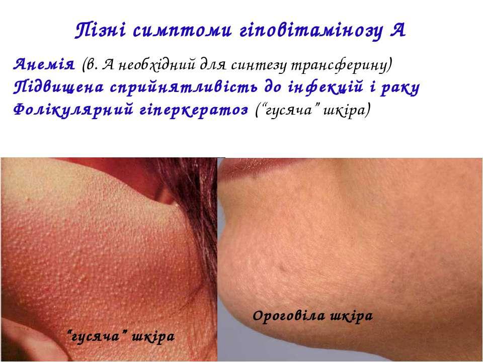 Пізні симптоми гіповітамінозу А Анемія (в. А необхідний для синтезу трансфери...