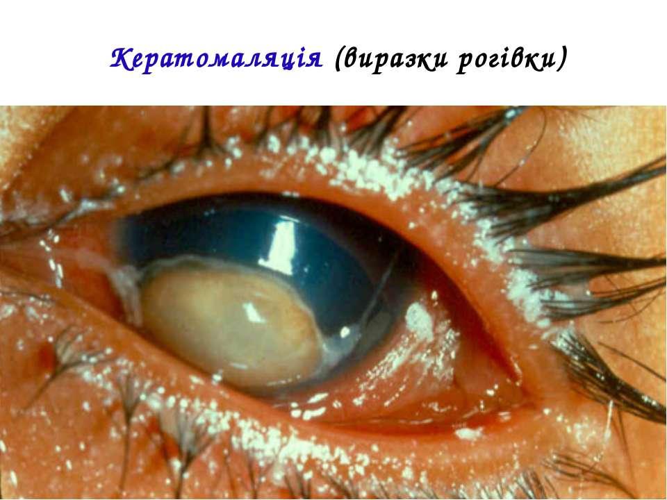 Кератомаляція (виразки рогівки)