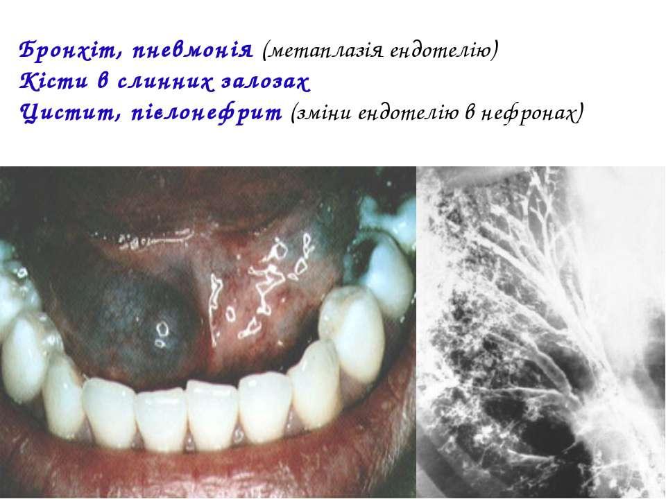 Бронхіт, пневмонія (метаплазія ендотелію) Кісти в слинних залозах Цистит, піє...