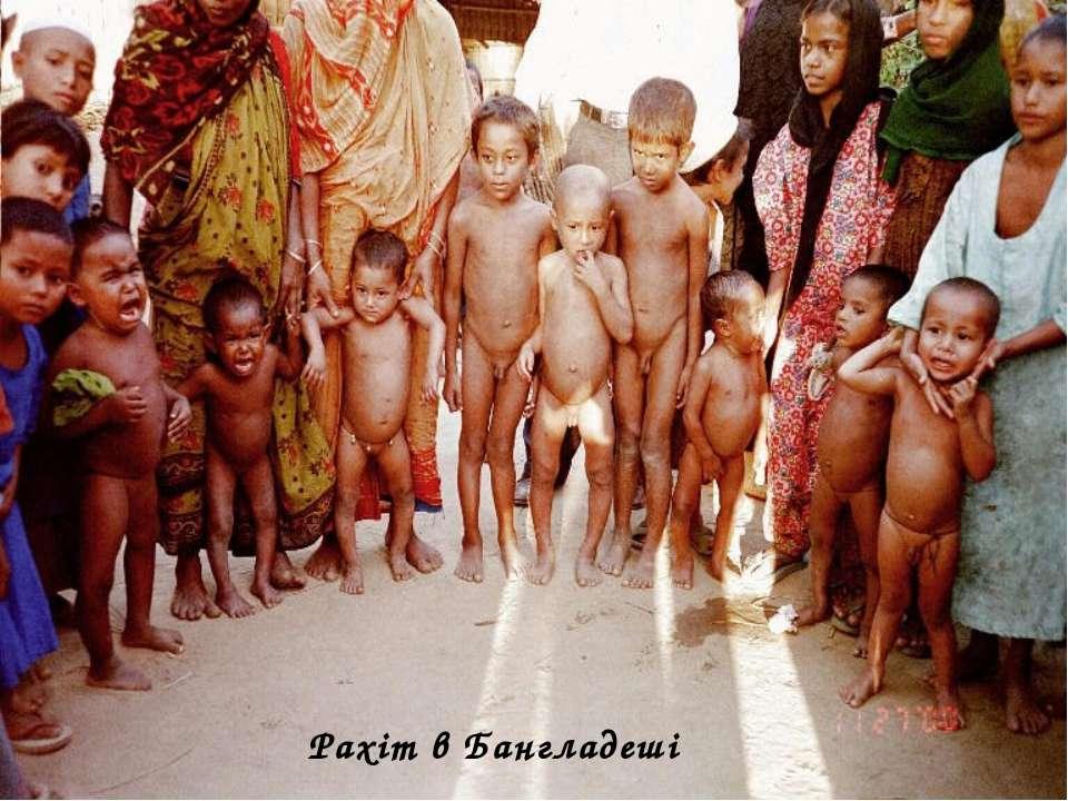 Рахіт в Бангладеші