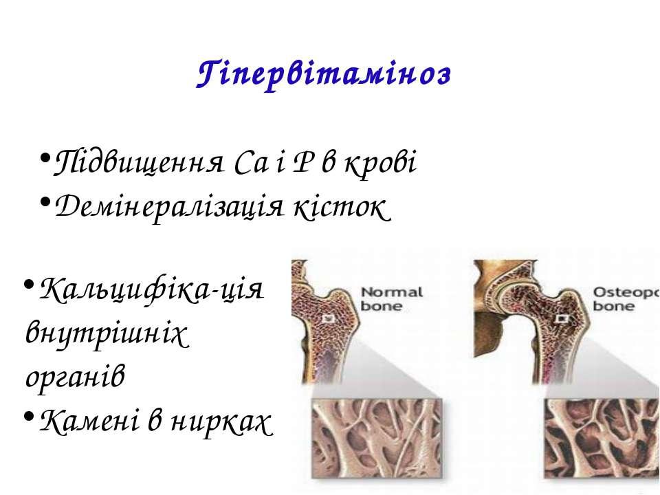 Гіпервітаміноз Підвищення Ca і P в крові Демінералізація кісток Кальцифіка-ці...