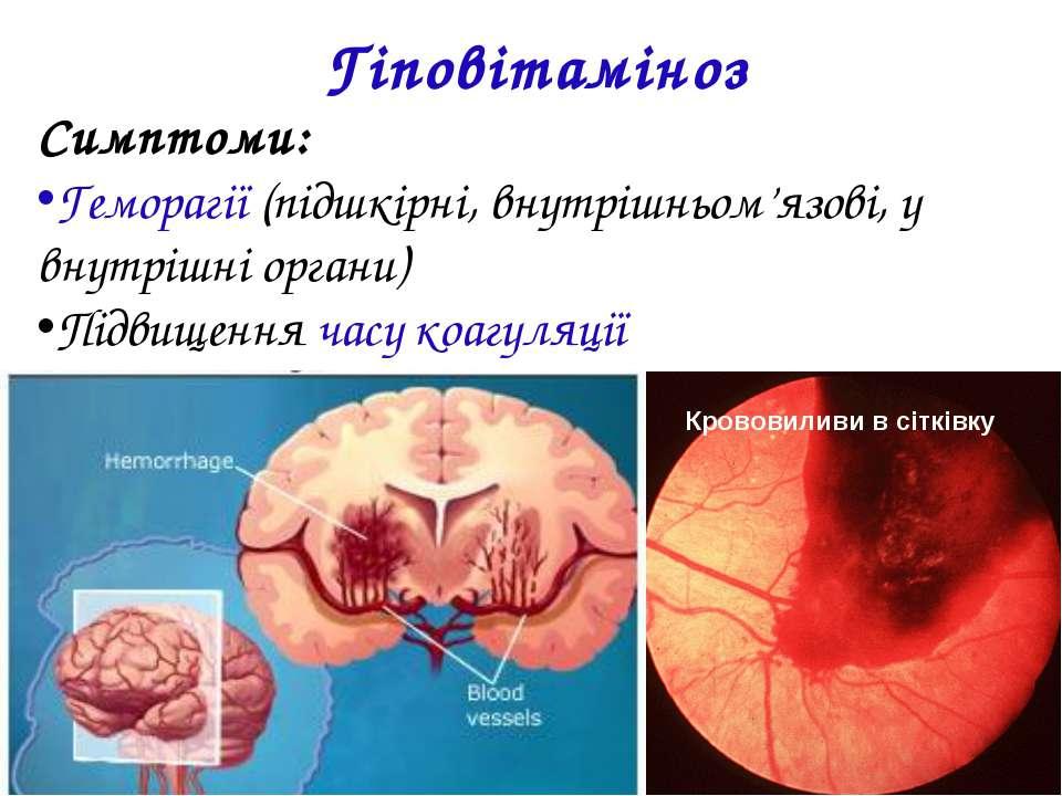 Гіповітаміноз Симптоми: Геморагії (підшкірні, внутрішньом'язові, у внутрішні ...