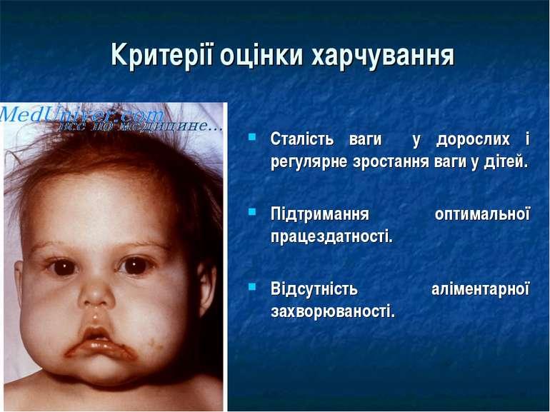 Критерії оцінки харчування Сталість ваги у дорослих і регулярне зростання ваг...