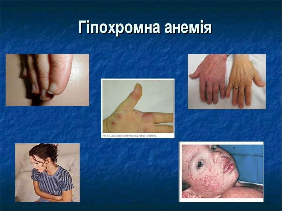 Гіпохромна анемія