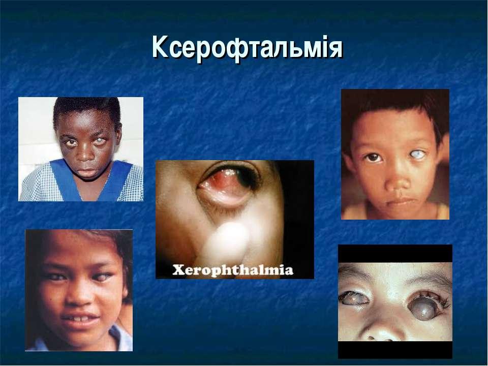 Ксерофтальмія