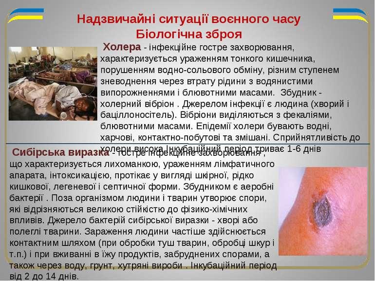 Надзвичайні ситуації воєнного часу Біологічна зброя Холера - інфекційне гостр...