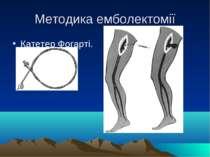 Методика емболектомії Катетер Фогарті.