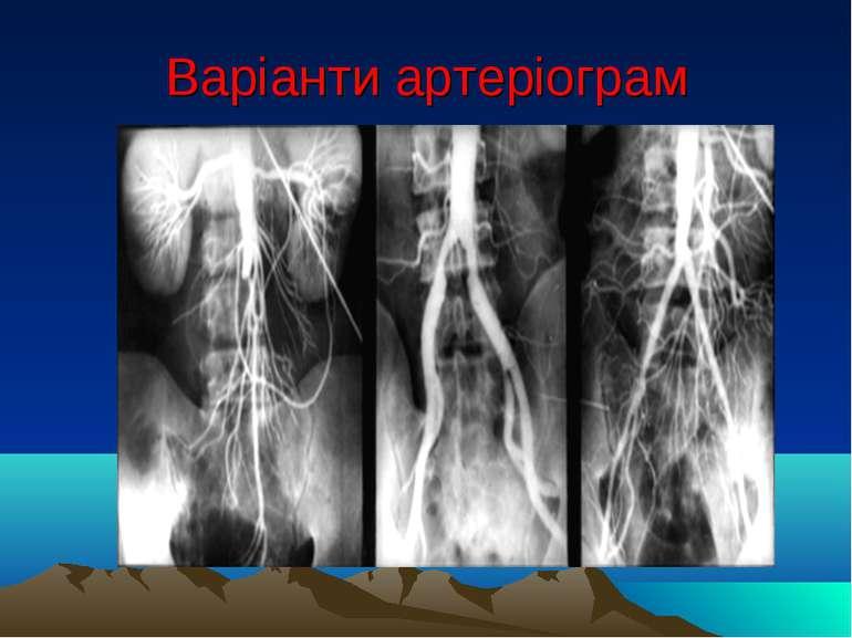 Варіанти артеріограм
