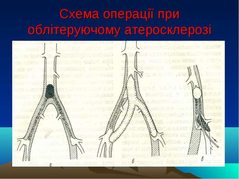Схема операції при облітеруючому атеросклерозі