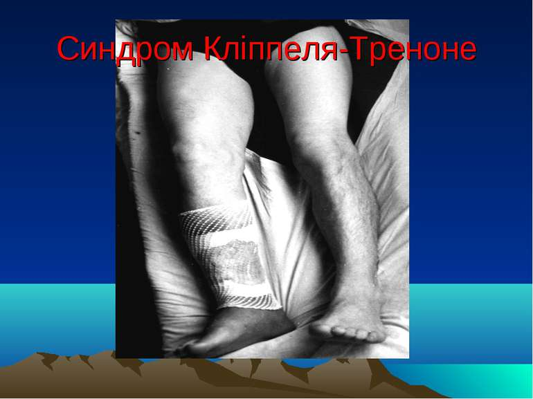 Синдром Кліппеля-Треноне
