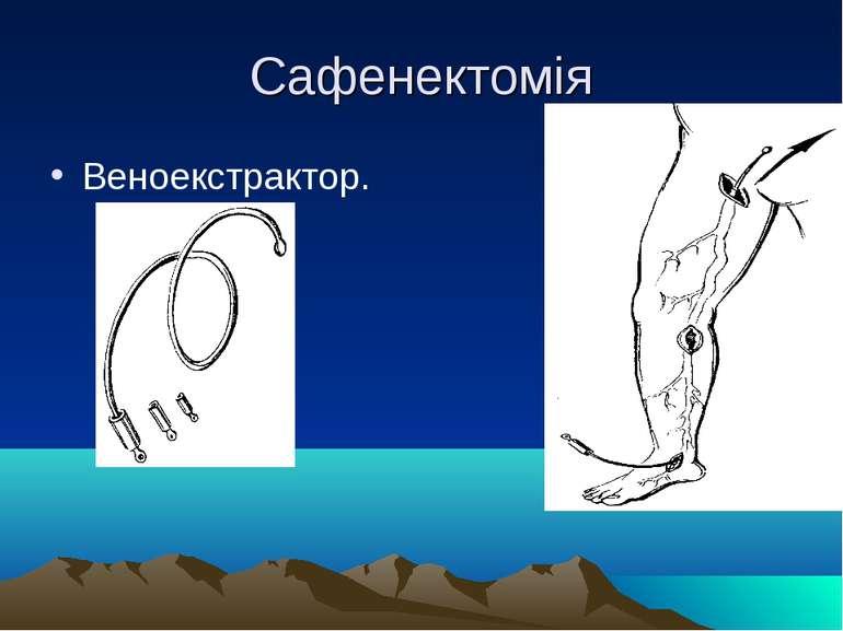 Сафенектомія Веноекстрактор.