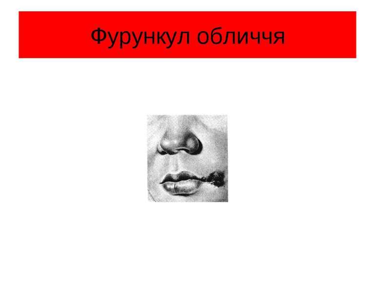 Фурункул обличчя