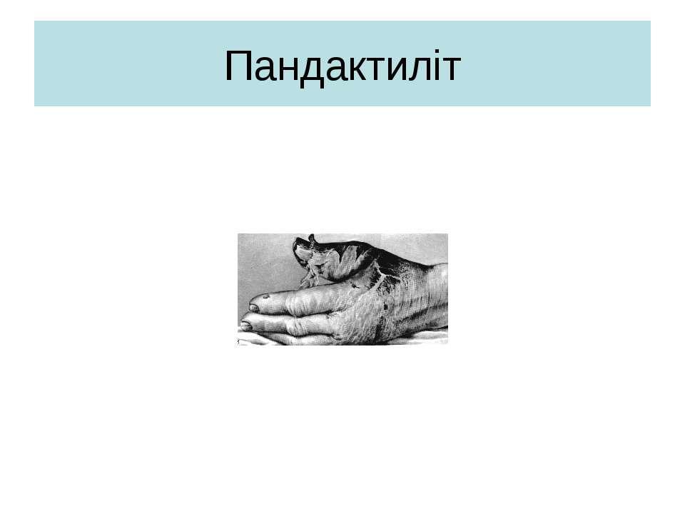 Пандактиліт