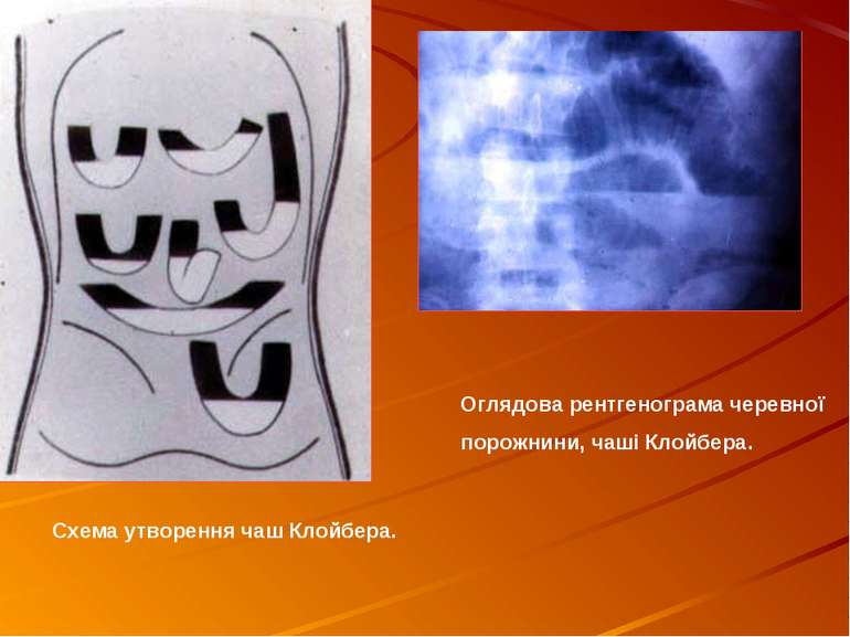 Оглядова рентгенограма черевної порожнини, чаші Клойбера. Схема утворення чаш...