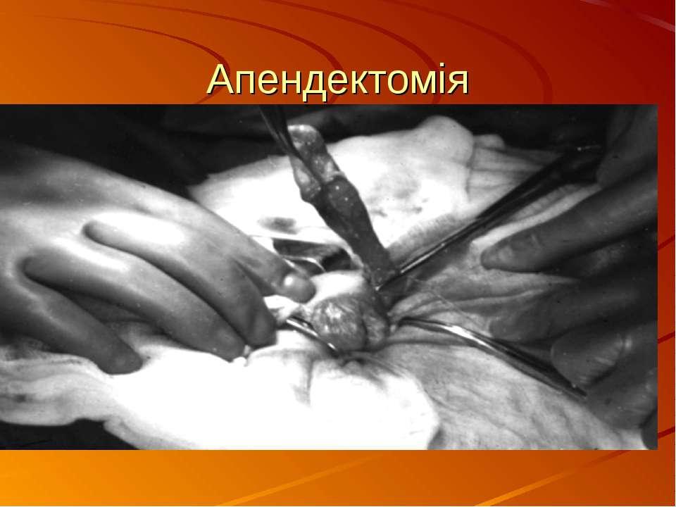 Апендектомія