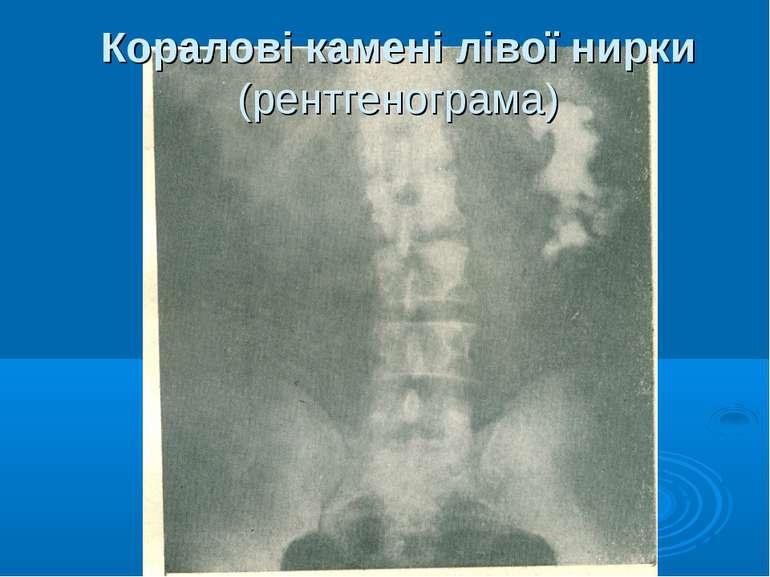 Коралові камені лівої нирки (рентгенограма)