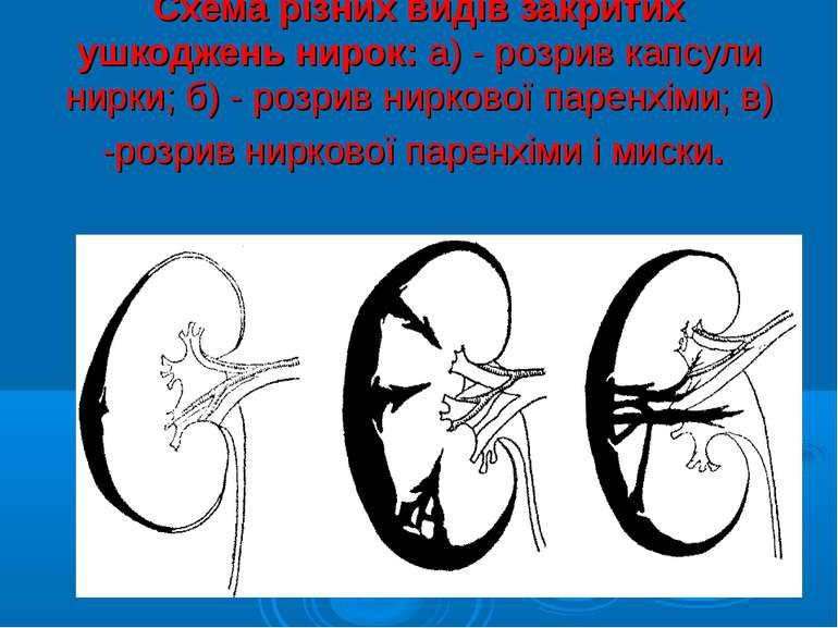Схема різних видів закритих ушкоджень нирок: а) - розрив капсули нирки; б) - ...