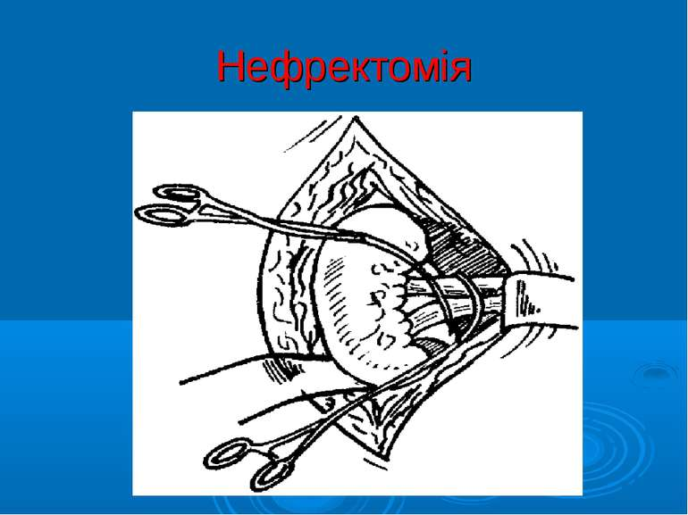Нефректомія