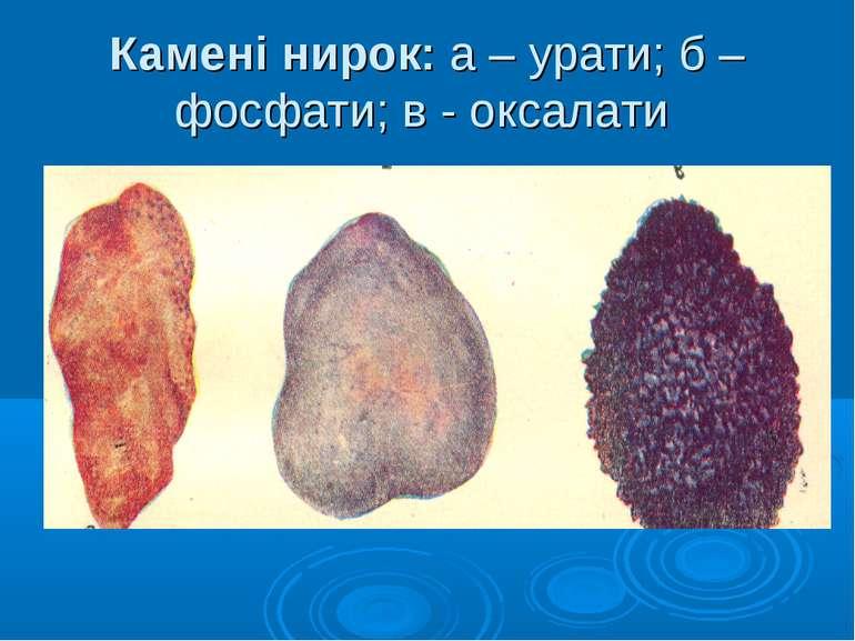 Камені нирок: а – урати; б – фосфати; в - оксалати