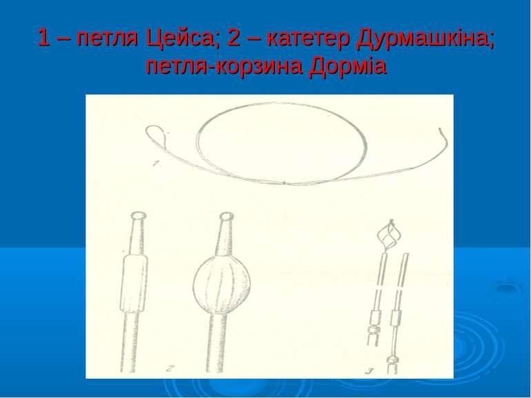 1 – петля Цейса; 2 – катетер Дурмашкіна; петля-корзина Дорміа