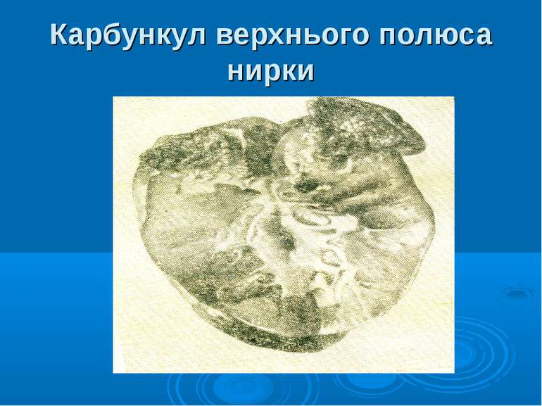 Карбункул верхнього полюса нирки