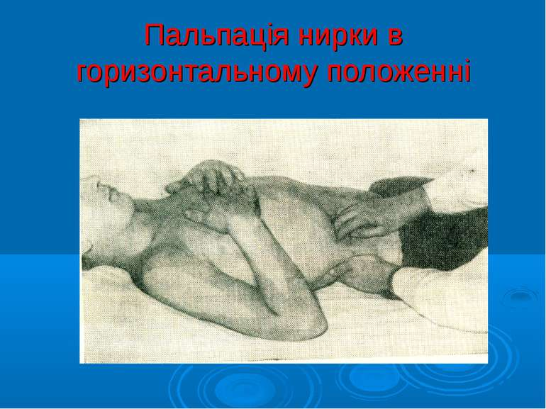 Пальпація нирки в горизонтальному положенні