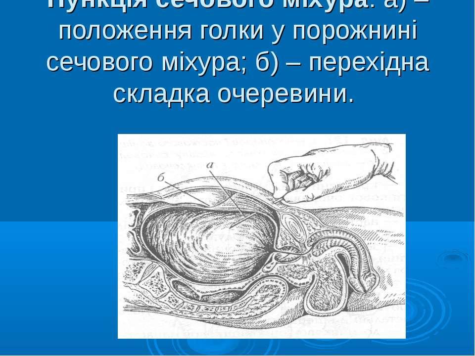 Пункція сечового міхура: а) – положення голки у порожнині сечового міхура; б)...