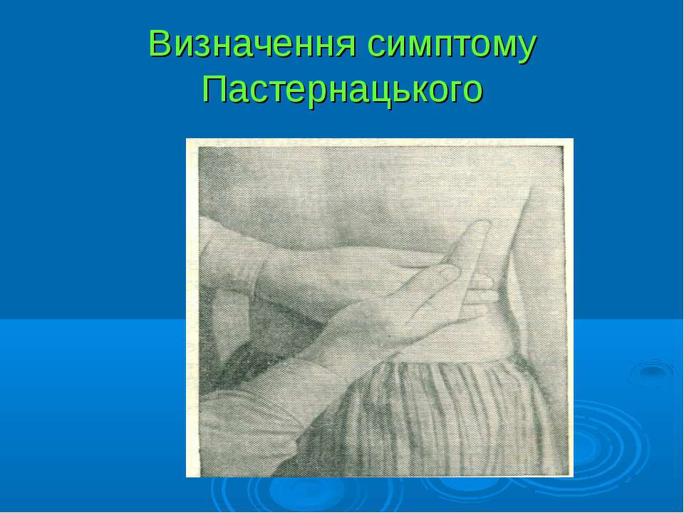 Визначення симптому Пастернацького