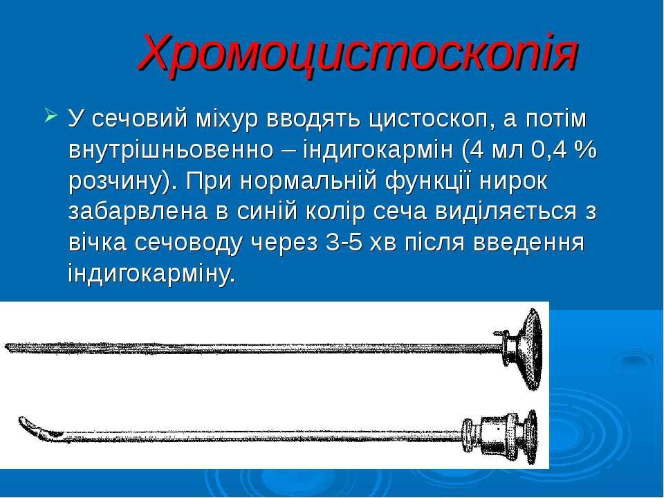 Хромоцистоскопія У сечовий міхур вводять цистоскоп, а потім внутрішньовенно –...