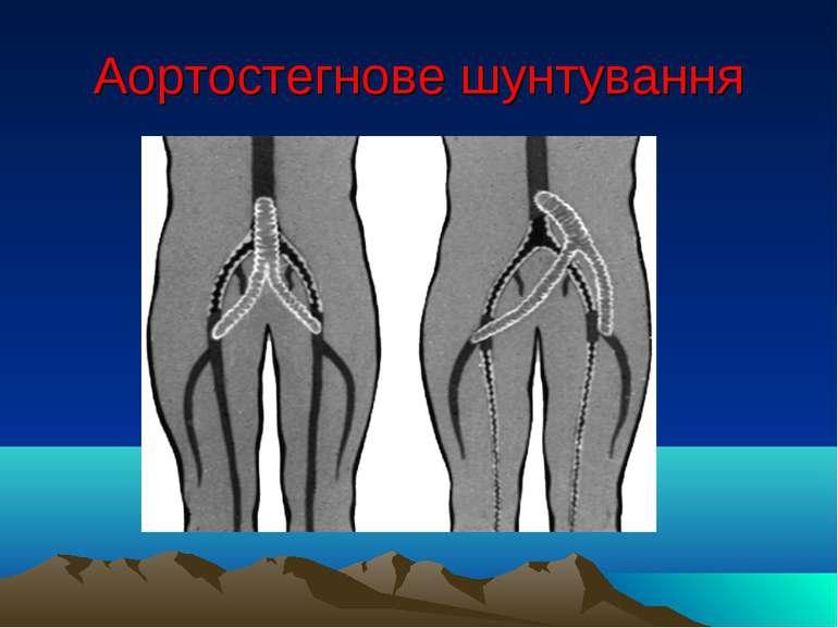 Аортостегнове шунтування