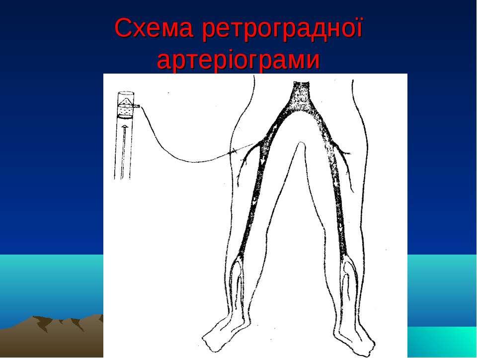 Схема ретроградної артеріограми