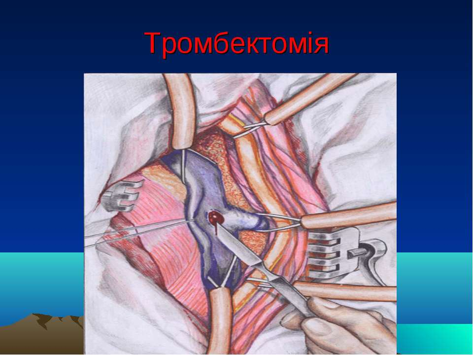 Тромбектомія