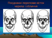 Поєднанні переломи кісток черепа і обличчя