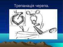 Трепанація черепа.